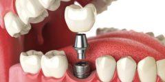 مضاعفات ما بعد زراعة الاسنان