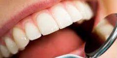اسباب اصفرار الاسنان و طرق العلاج