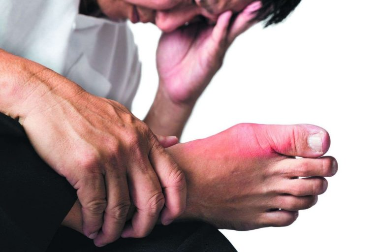 ما هو مرض النقرس ؟ تعرف على أسباب مرض النقرس وأعراضه وطرق علاجه