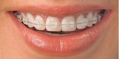 ضرورة خلع الأسنان قبل التقويم