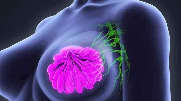 سرطان الثدي أسبابه وأعراضه وطرق الوقاية منه