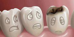 اسباب ضعف الأسنان وكيفية علاجها