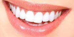 طريقة تجميل الاسنان بدون تقويم