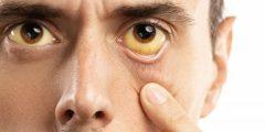 هل مرض الصفراء معدي