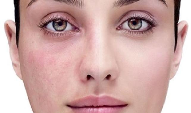 علاج حساسية المكياج  علاج واعراض حساسية مستحضرات التجميل