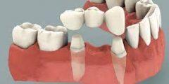 كم العمر الافتراضي لجسر الاسنان