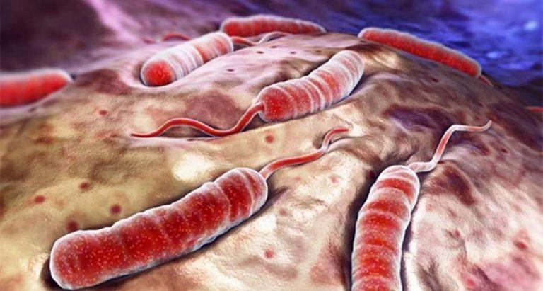 ما هو مرض الكوليرا ؟ أعراض وأسباب وطرق علاج مرض الكوليرا