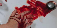 طرق إسعاف النزيف الخارجي External bleeding