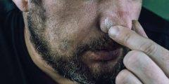 أعراض ثقب الجيوب الأنفيه