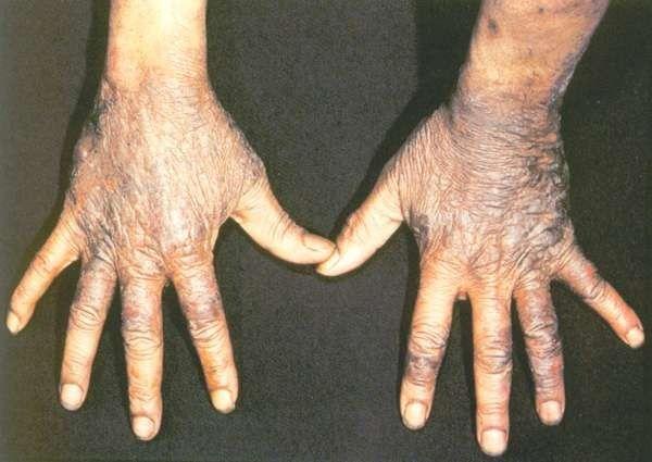 ما هو مرض البلاجرا ؟