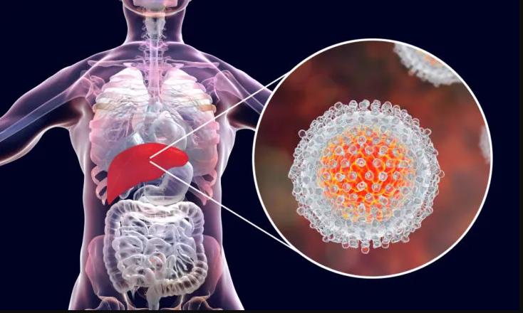 اعراض مرض الكبد الوبائي b أهم الأعراض الرئيسية له وطرق الوقاية منه