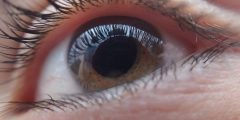 ما هي أمراض سطح العين