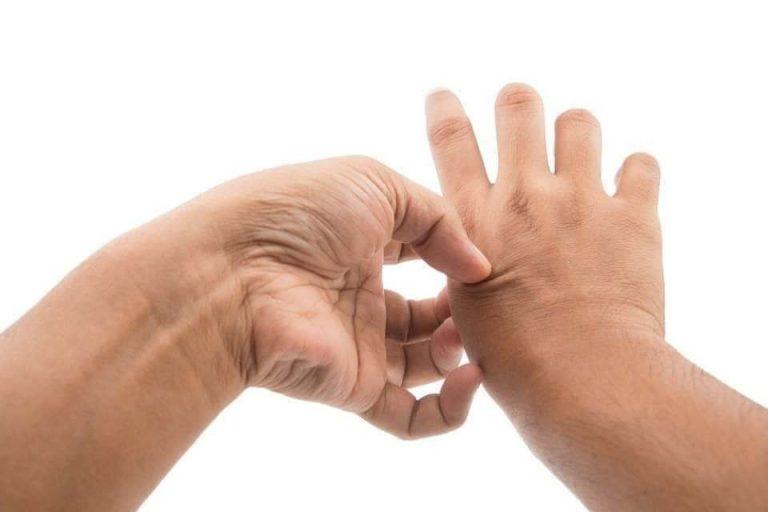 ما هو مرض مورغيلونس ؟ تعرف على أعراض وتشخيص مرض مورغيلونس المعدي