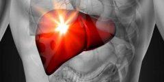 أعراض قصور الكبد