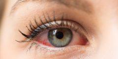 كيفية التخلص من حساسية العين