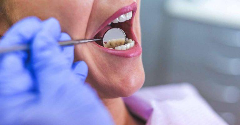 أعراض خراج الأسنان  الاعراض والوقاية واهم العلاجات لتخفيف الم الخراج